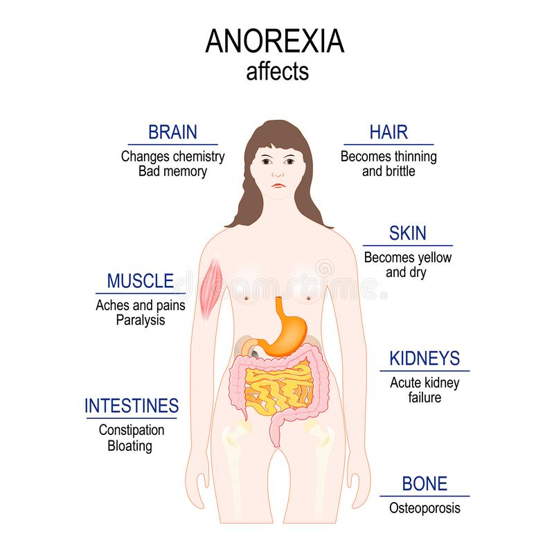 Anorexia nervosa is an eating disorder. low weight. Anorexia affects stock illustration