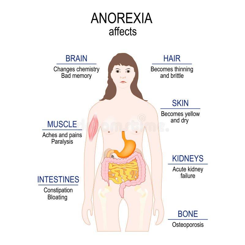 Anorexia nervosa ist eine Essstörung Niedriges Gewicht Magersuchtaffekte stock abbildung