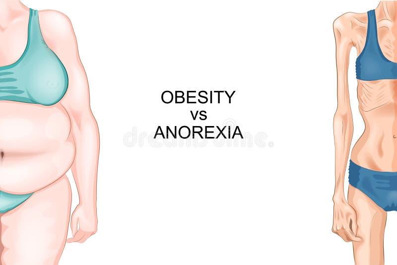 Anorexie en zwaarlijvigheid royalty-vrije illustratie
