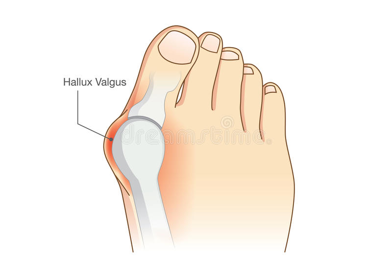 Anormalny nożny kształt od deformaci złącza palec u nogi ilustracja wektor