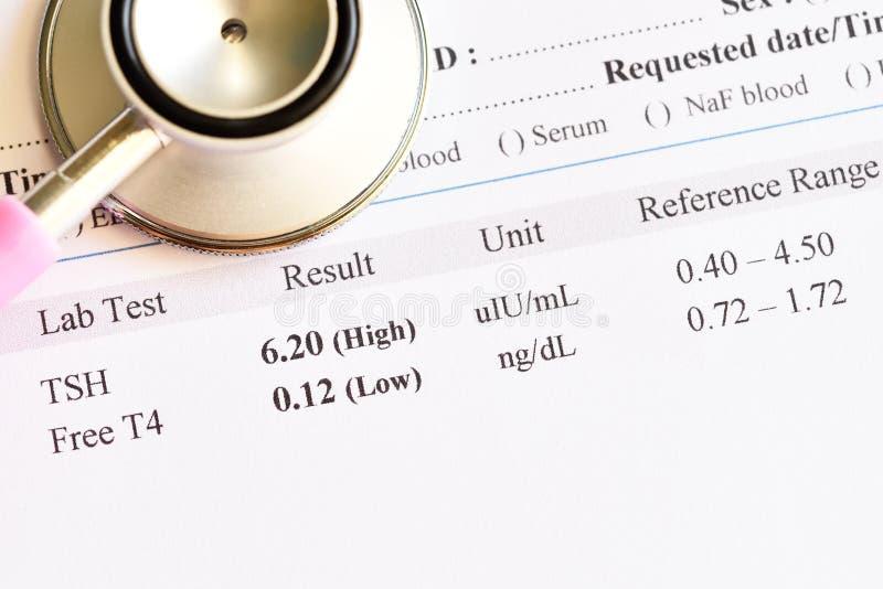 Anormalny tarczycowego hormonu wynik testu fotografia stock