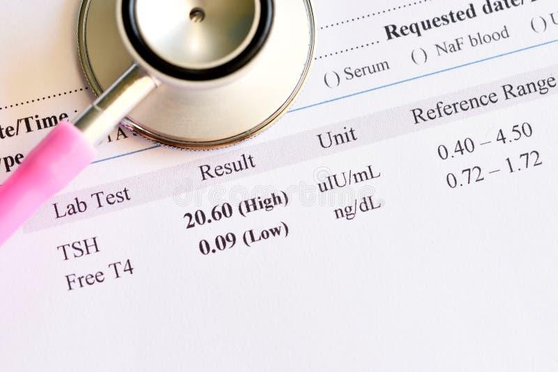 Anormalny tarczycowego hormonu wynik testu z stetoskopem obraz stock