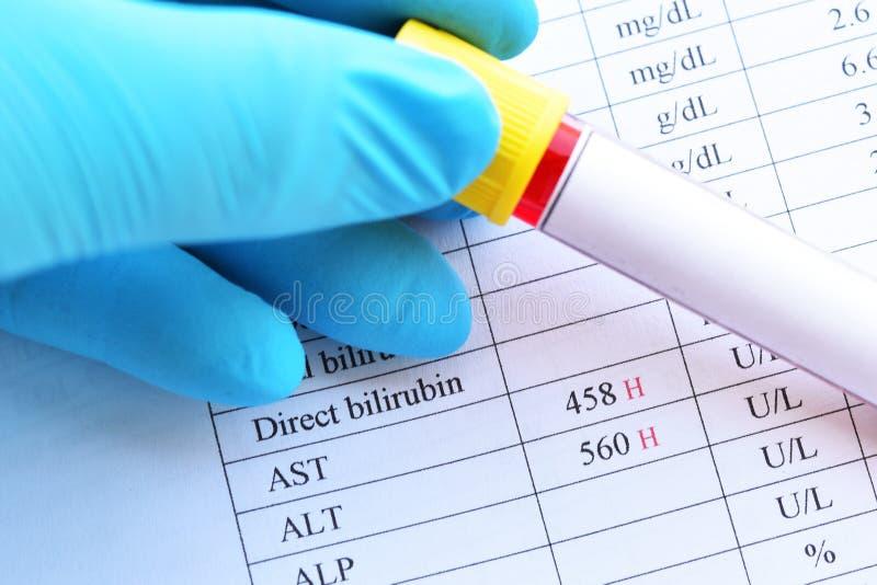 Anormalny wysokiej wątróbki enzymu wynik testu obraz royalty free