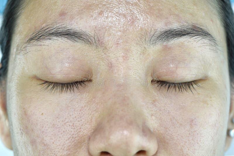 Ansikts- hudproblem som åldras problem i vuxen människa, skrynkla, akneärr royaltyfria bilder