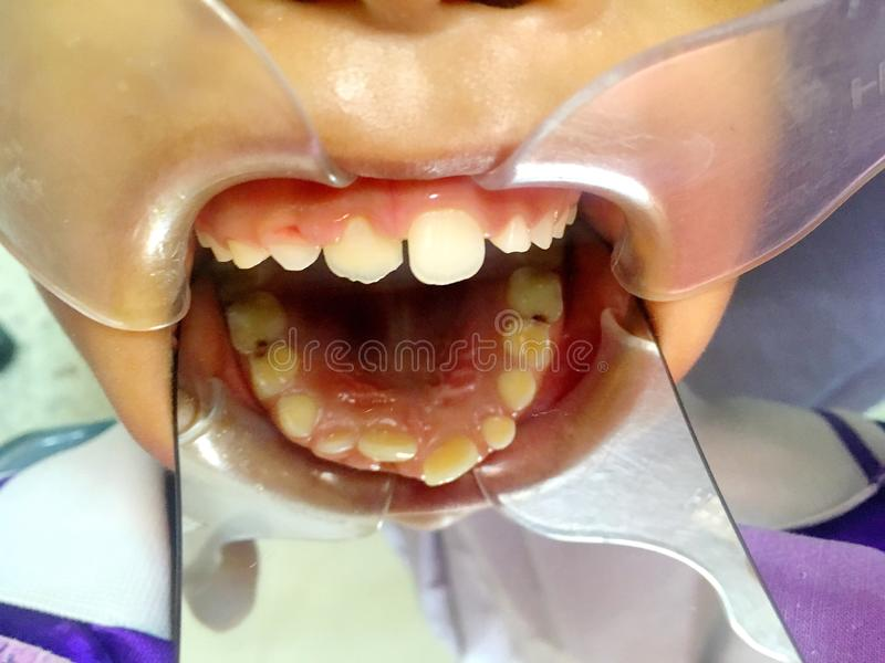The anterior crossbite of front tooth in an Asian child with the. The photo of the anterior crossbite of front tooth in an Asian child with the cheek retractor royalty free stock images