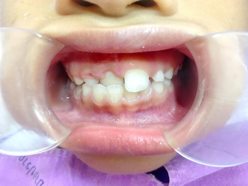 The anterior crossbite of front tooth in an Asian child with the. The photo of the anterior crossbite of front tooth in an Asian child with the cheek retractor royalty free stock photography