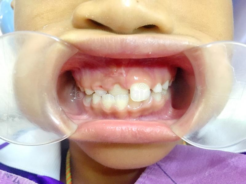 The anterior crossbite of front tooth in an Asian child with the. The photo of the anterior crossbite of front tooth in an Asian child with the cheek retractor stock image