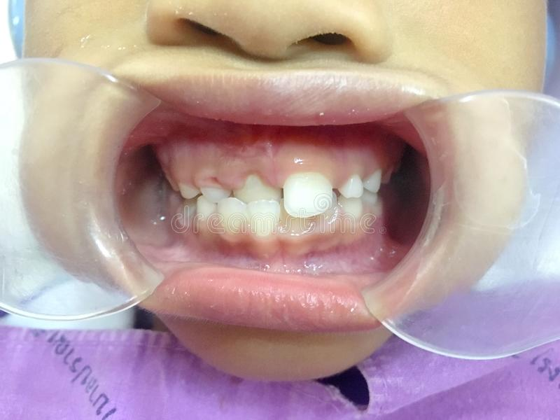 The anterior crossbite of front tooth in an Asian child with the. The photo of the anterior crossbite of front tooth in an Asian child with the cheek retractor royalty free stock photos