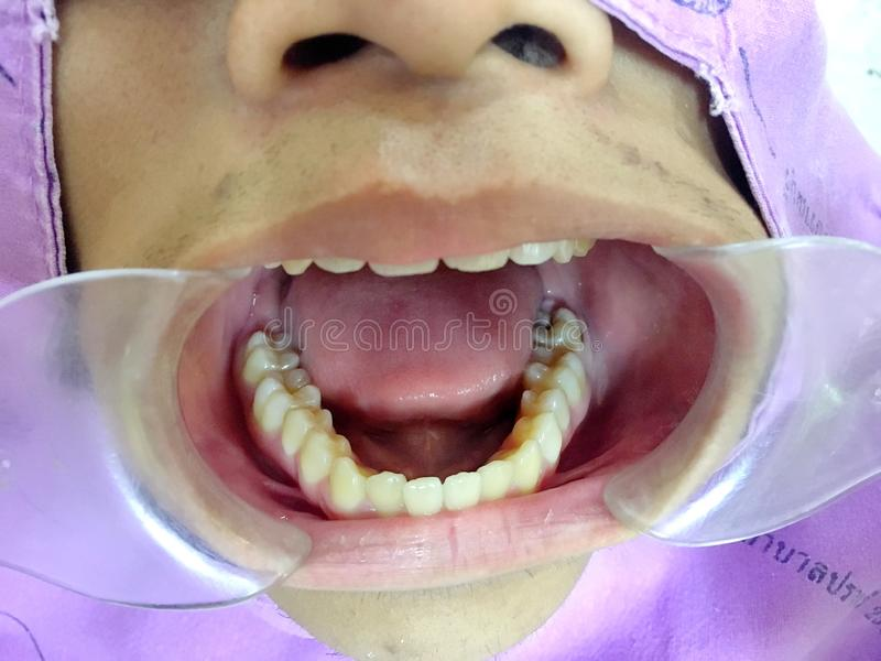 The anterior crossbite of front tooth in an Asian child with the. The photo of the anterior crossbite of front tooth in an Asian child with the cheek retractor stock photos