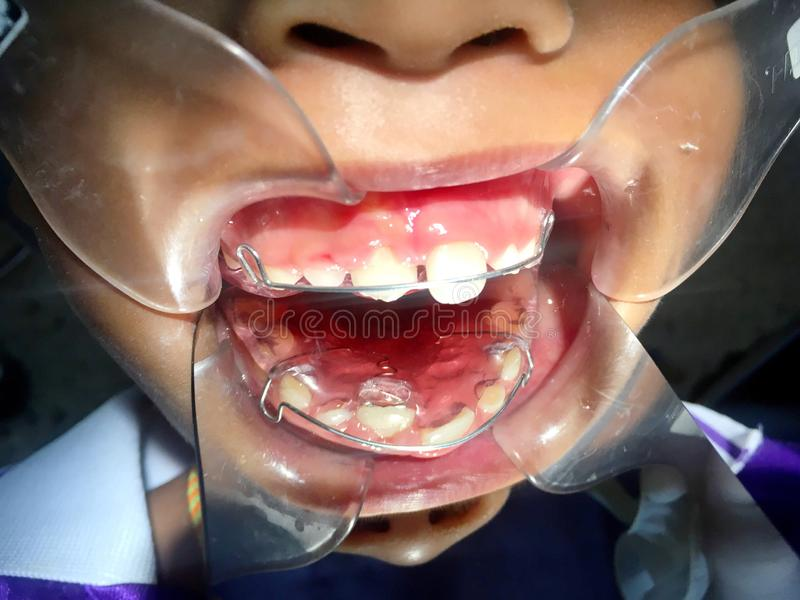 The anterior crossbite of front tooth in an Asian child with the. The photo of The anterior crossbite of front tooth in an Asian child with the removable denture royalty free stock photography
