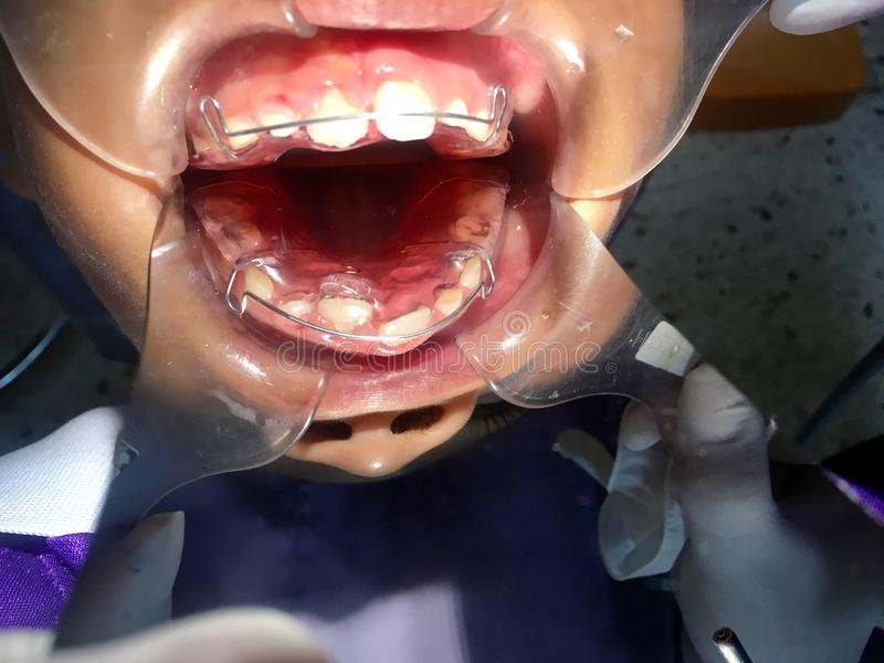 The anterior crossbite of front tooth in an Asian child with the. The photo of The anterior crossbite of front tooth in an Asian child with the removable denture stock photography