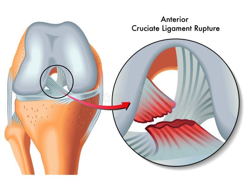 Anterior cruciate ligament rupture. Medical Illustration of anterior cruciate ligament rupture royalty free illustration