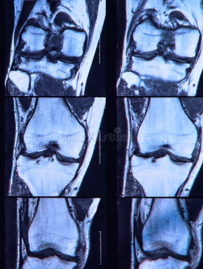 Anterior cruciate wiązadło łza widzieć na kolanie MRI. zdjęcia stock