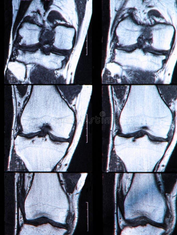 Anterior cruciate wiązadło łza widzieć na kolanie MRI. zdjęcie royalty free