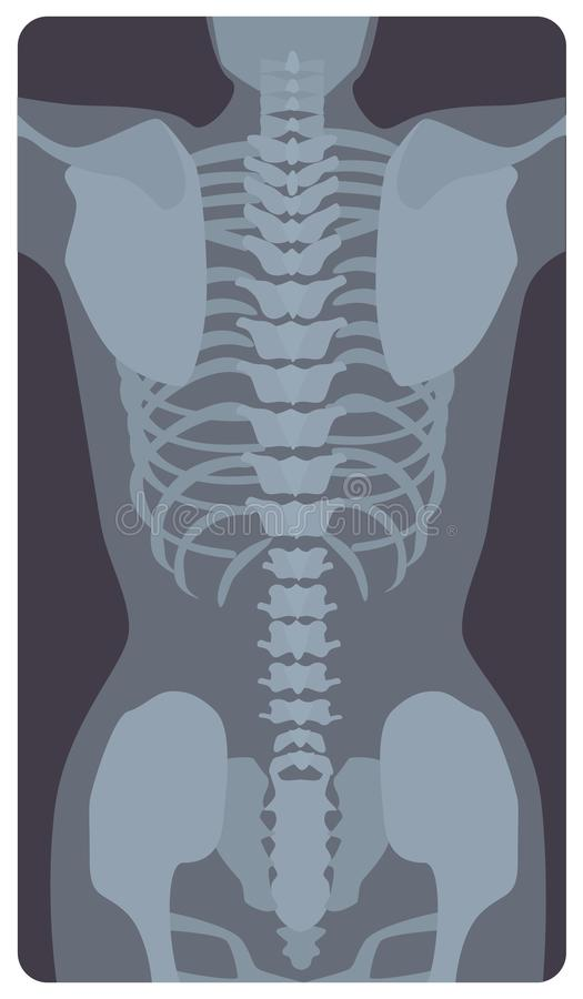 Anterior radiograph of human rib cage and pelvis. X-ray picture or radiographic image of bones and joints, front view. Medical diagnostics. Monochrome vector stock illustration