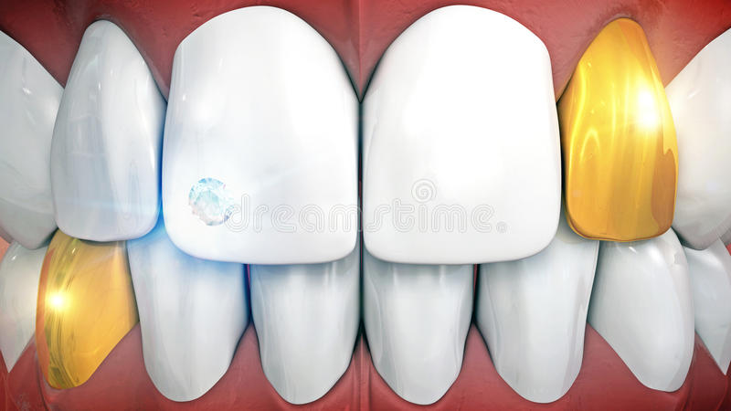 Anterior teeth with gemstone implant and eyeteeth in gold. Tooth jewelery with gemstone and gold crown vector illustration