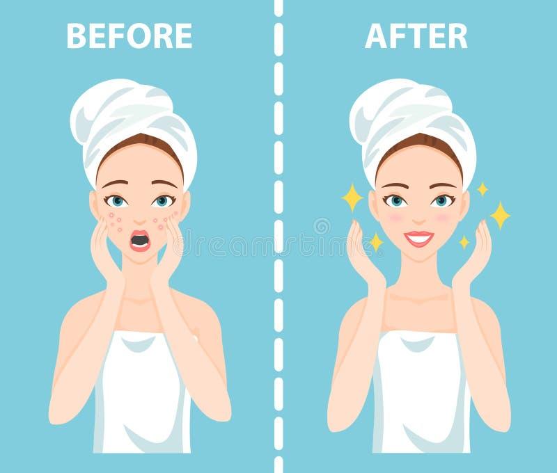 Antes-após o grupo de virada e de mulher feliz com necessidades faciais fêmeas dos problemas de pele de importar-se aproximadamen ilustração do vetor