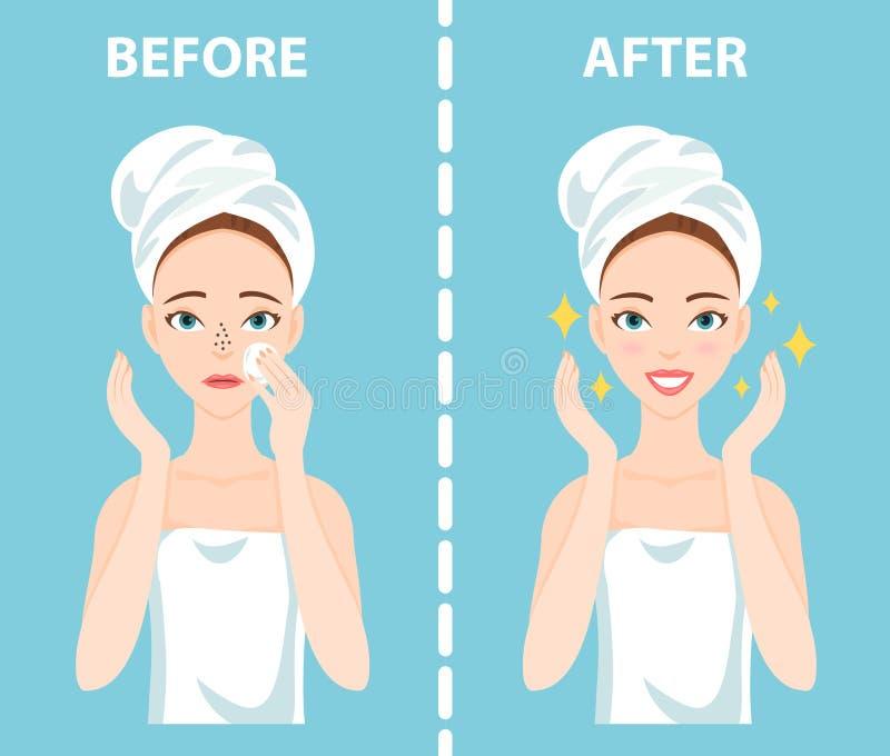 Antes-após o grupo de virada e de mulher feliz com necessidades faciais fêmeas dos problemas de pele de importar-se aproximadamen ilustração royalty free