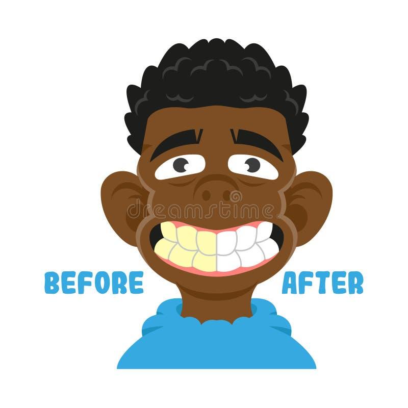 Antes após os dentes limpos ilustração do vetor