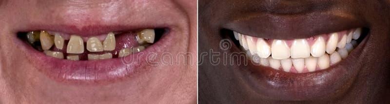 Antes e depois imagem de stock