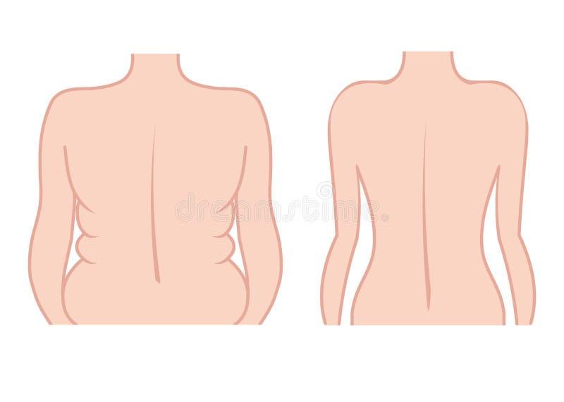 Antes e depois da forma do corpo Ilustração do vetor EPS ilustração royalty free