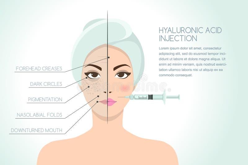 Antes e depois da ilustração da mulher que tem a injeção do facial do ácido hialurónico ilustração do vetor