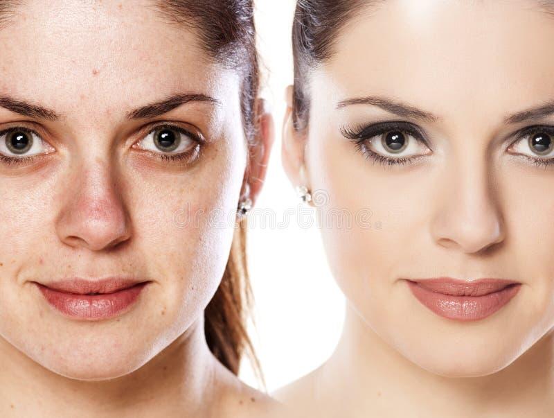 Download Antes e depois de compõe foto de stock. Imagem de cuidado - 65576922