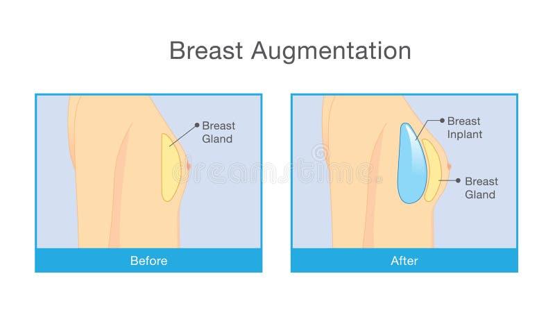 Antes e depois do aumento do peito ilustração stock