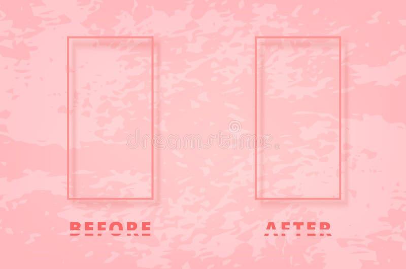 Antes e depois do cartão Ilustração do vetor ilustração stock