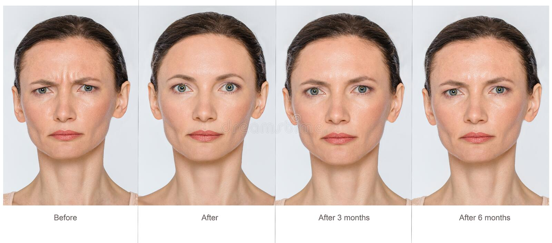 Antes e depois do conceito da anti-idade foto de stock