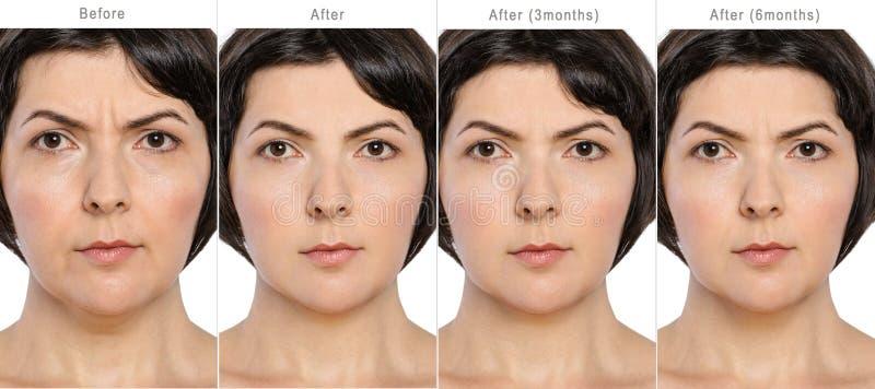 Antes e depois do conceito da cosmetologia da anti-idade fotos de stock royalty free