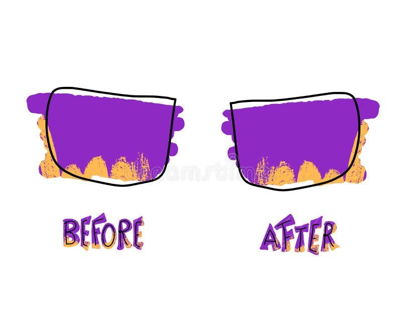 Antes e depois do molde Ilustra??o do vetor ilustração stock