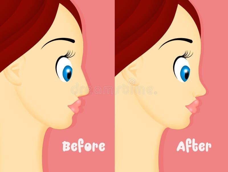 Antes e depois do rhinoplasty ilustração do vetor