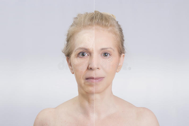 Antes e depois do tratamento da pele foto de stock