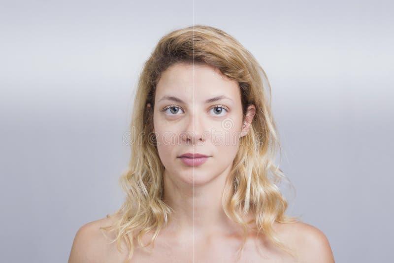 Antes e depois do tratamento da pele foto de stock royalty free