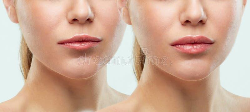 Antes y después de inyecciones del llenador de los labios Plástico de la belleza Labios perfectos hermosos con maquillaje natural imagen de archivo libre de regalías