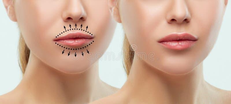 Antes y después de inyecciones del llenador de los labios Plástico de la belleza Labios perfectos hermosos con maquillaje natural fotografía de archivo