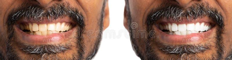 Antes y después de los dientes el blanquear o del blanqueo imágenes de archivo libres de regalías