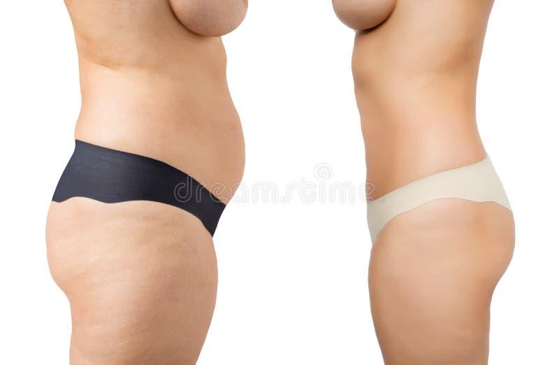 Antes y después de pérdida de peso fotografía de archivo