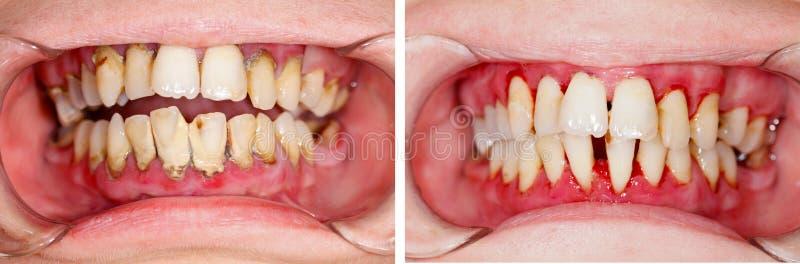 Antes y después del tratamiento foto de archivo