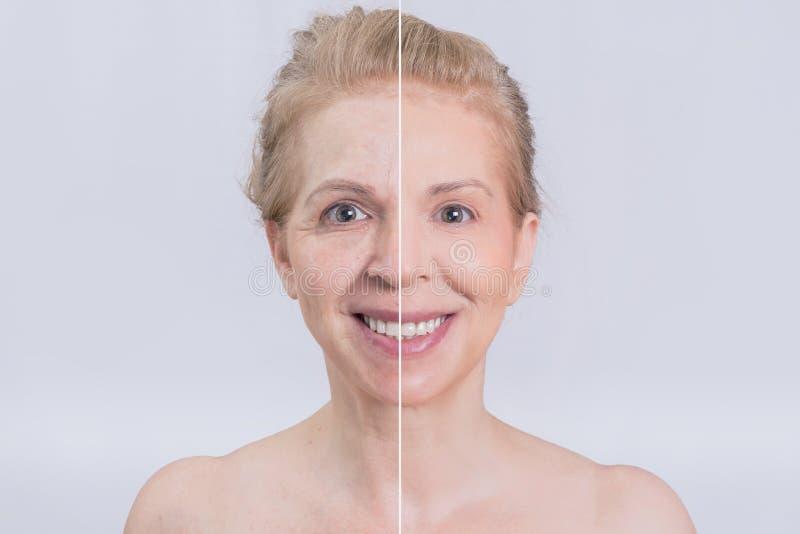 Antes y después del tratamiento de la piel imagen de archivo libre de regalías