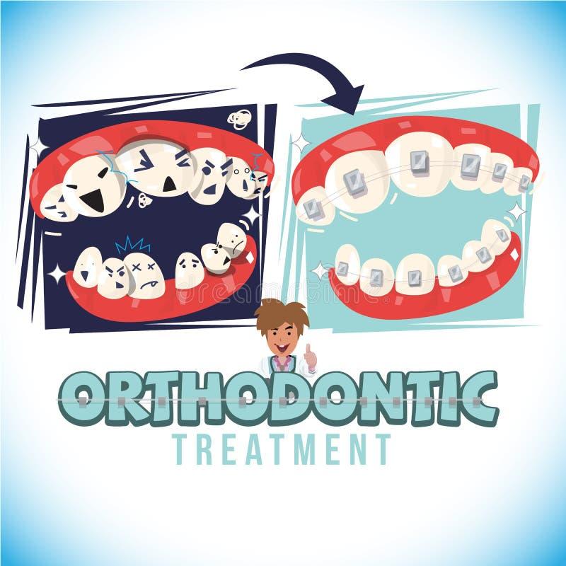 Antes y después del tratamiento del orthodontist venga con el diseño tipográfico - ejemplo del vector ilustración del vector