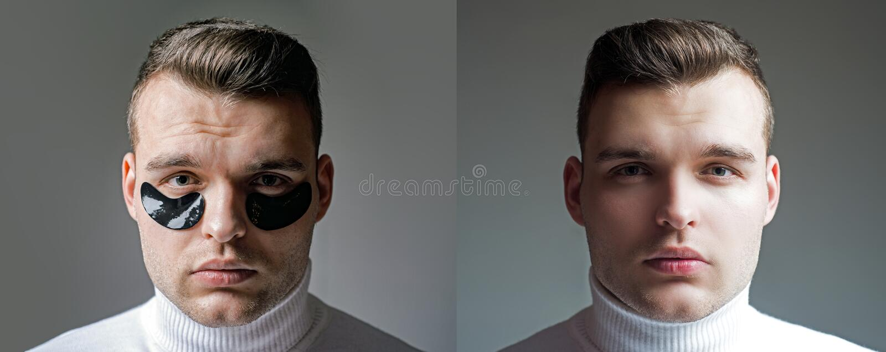 Antes y despu?s de resultado Minimiza puffiness y reduce c?rculos oscuros Remiendos del ojo para los hombres Hombre con los remie fotos de archivo libres de regalías
