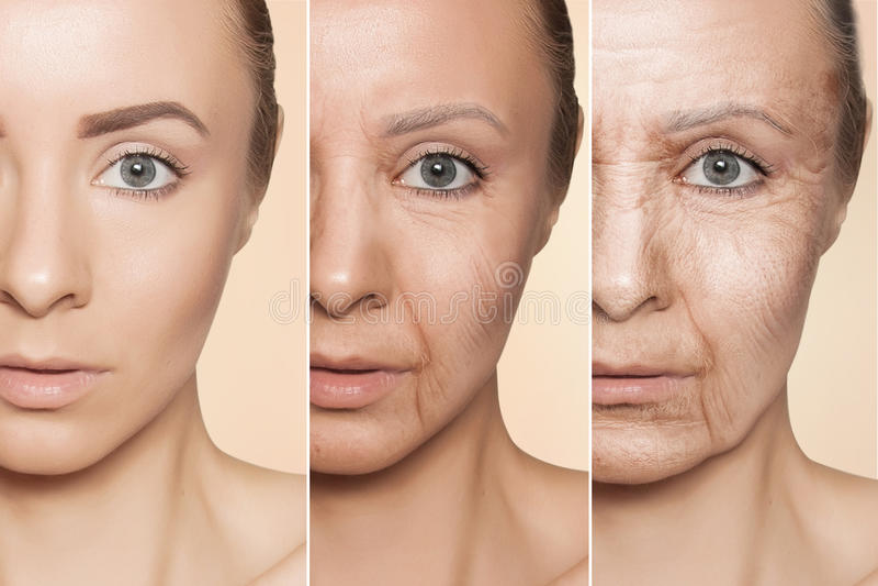 Anti-aging procedures on caucasian woman face stock photo