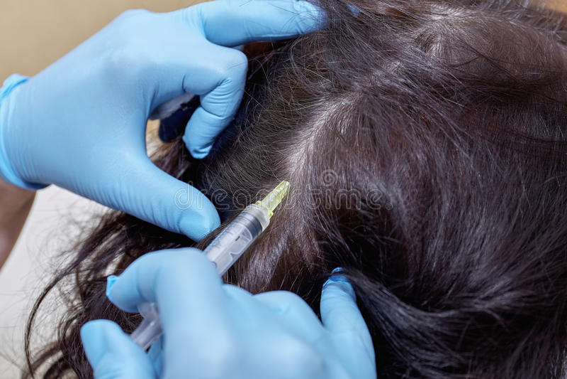 Anti hair loss injection in clinic. Anti hair loss injection in clinic royalty free stock photography