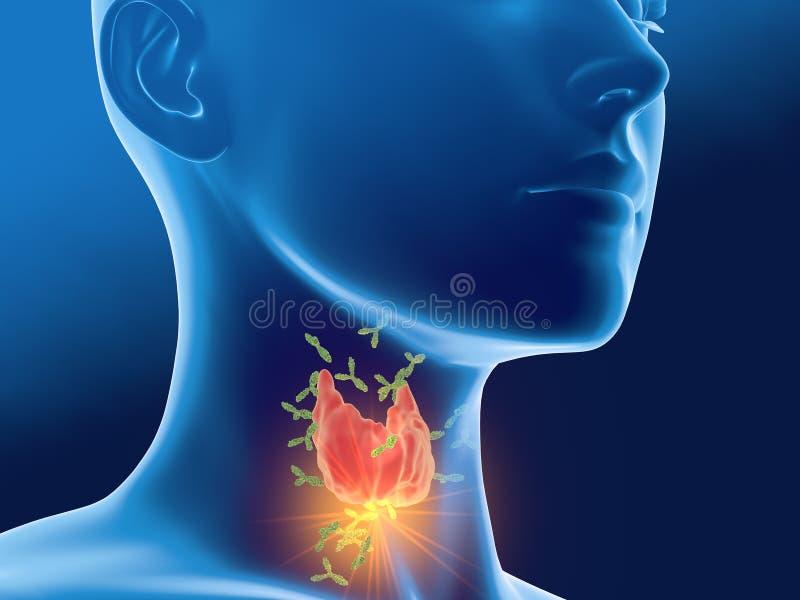 Antikropper som anfaller sk?ldk?rteln av en kvinna, Autoimmune thyroiditis, Hashimotos sjukdom royaltyfri illustrationer