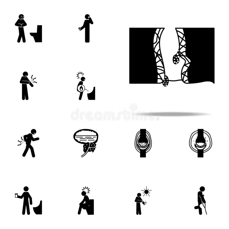 anus, diagram, hemorrhoids icon. Pain People icons universal set for web and mobile royalty free illustration