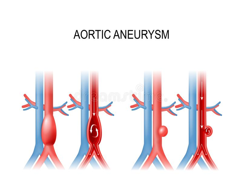 Aorta- aneurysm vektorillustration för medicinskt bruk stock illustrationer