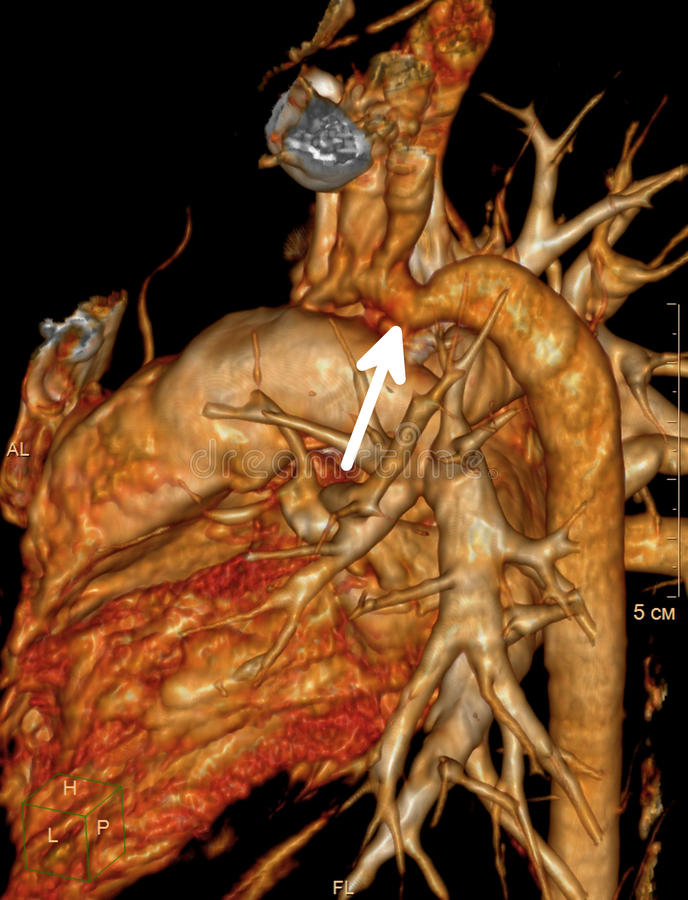 Aortencoarctation lizenzfreie abbildung