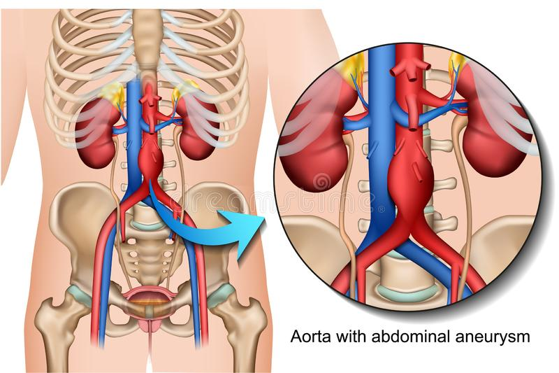 Aortenmedizinische Illustration des abdominalen Aneurysmas 3d lokalisiert auf weißem Hintergrund vektor abbildung